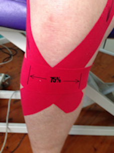 Knee strapping