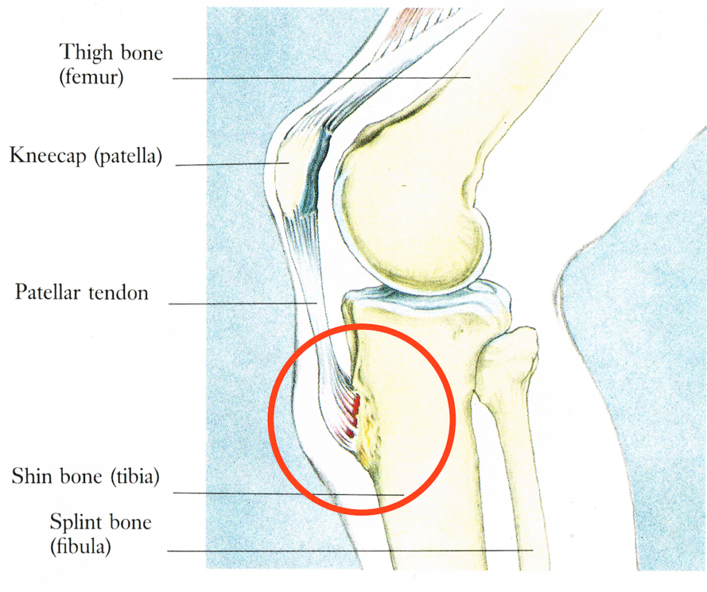 Diagram of the knee, showing the location affected by Osgood–Schlatter disease.